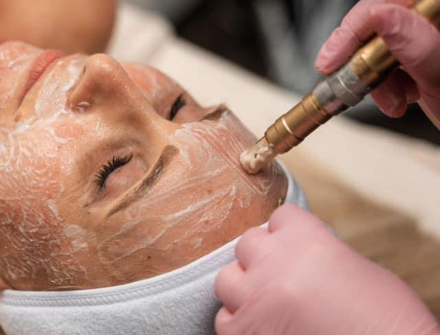 Woman In Spa Receiving Microneedling Treatment