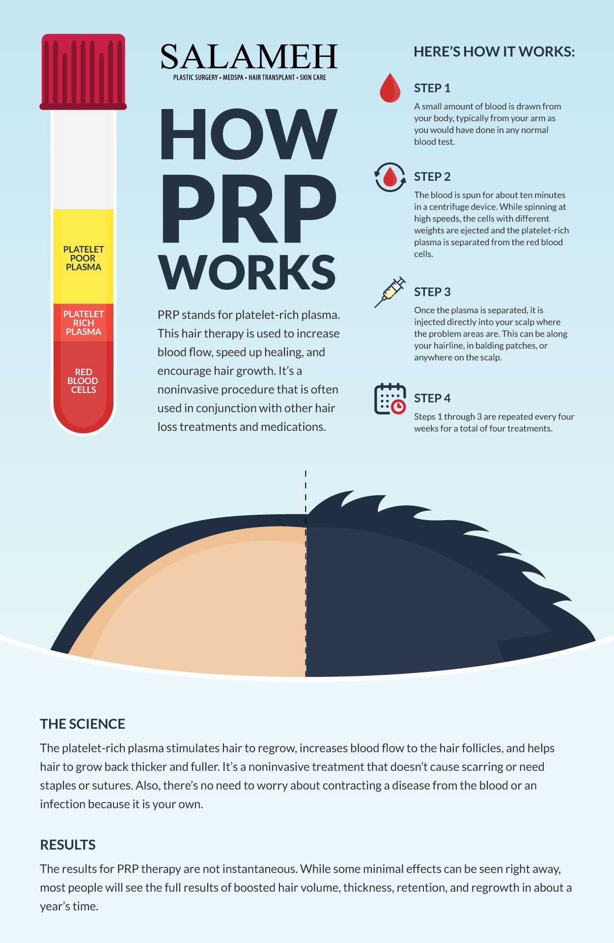 How Do Plasma Injections for Hair Work - Infographic