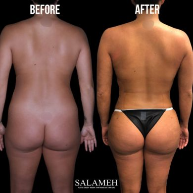 salameh plastic surgery before after result