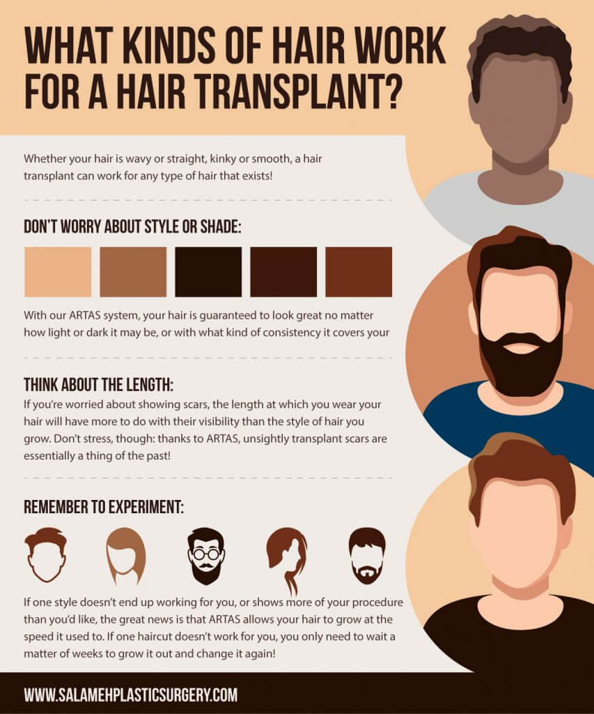 What kind of Hair work for a Hair Transplant