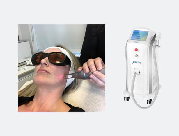 woman undergoing diode ice laser