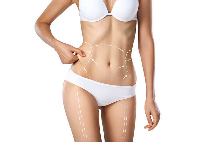 a woman's torso in a white bikini with marks for plastic surgery